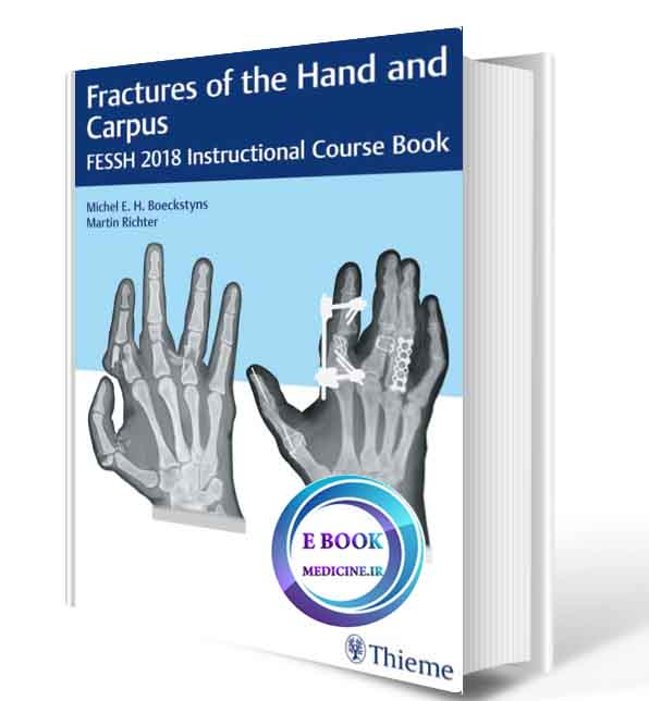 دانلود کتاب Fractures of the Hand and Carpus2018 ( ORIGINAL PDF)