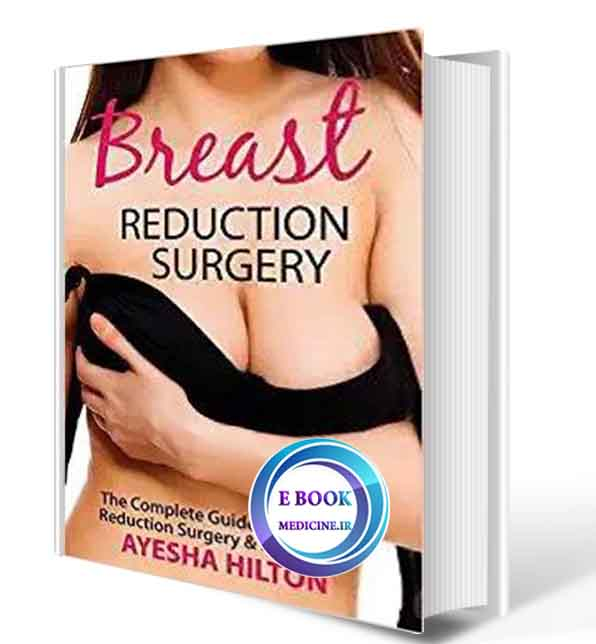 دانلود کتاب Breast Reduction Surgery: The Complete Guide to Breast Reduction Surgery & Recovery2019 ( PDF)