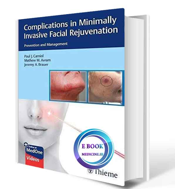 دانلود کتاب Complications in Minimally Invasive Facial Rejuvenation: Prevention and Management  2020( ORIGINAL PDF)