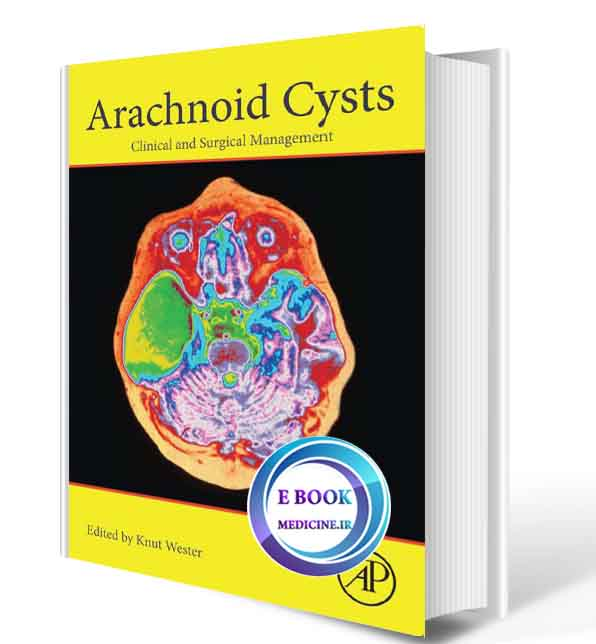دانلود کتاب Arachnoid Cysts: Clinical and Surgical Management 2018(ORIGINAL PDF)
