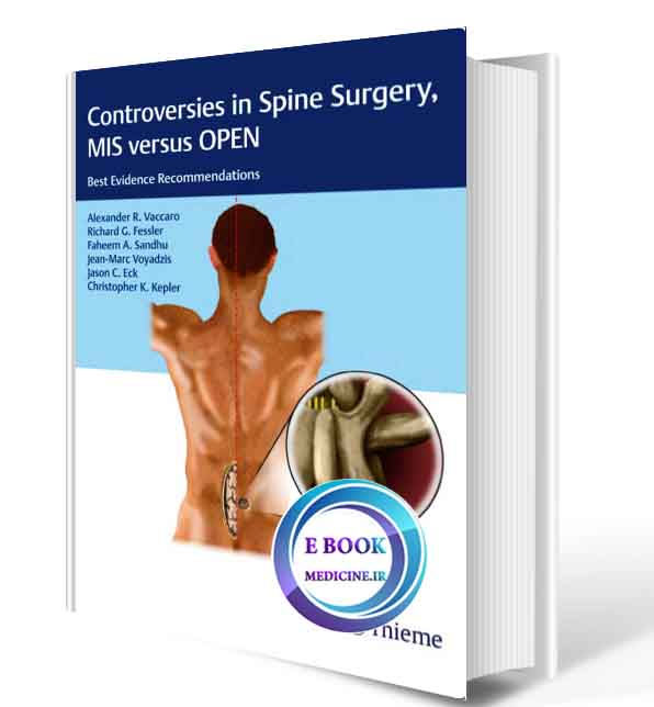 دانلود کتاب Controversies in Spine Surgery, MIS versus OPEN: Best Evidence Recommendations  2018(ORIGINAL PDF)