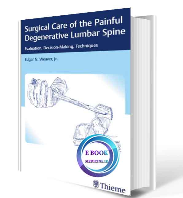 دانلود کتاب Surgical Care of the Painful Degenerative Lumbar Spine: Evaluation, Decision-Making, Techniques  2018(ORIGINAL PDF)