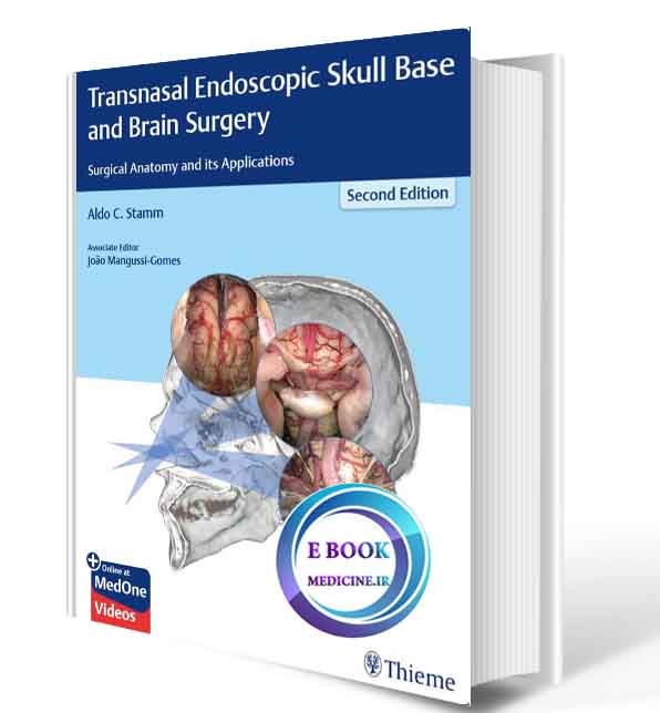 دانلود کتابTransnasal Endoscopic Skull Base and Brain Surgery: Surgical Anatomy and its Applications2019(ORIGINAL PDF)
