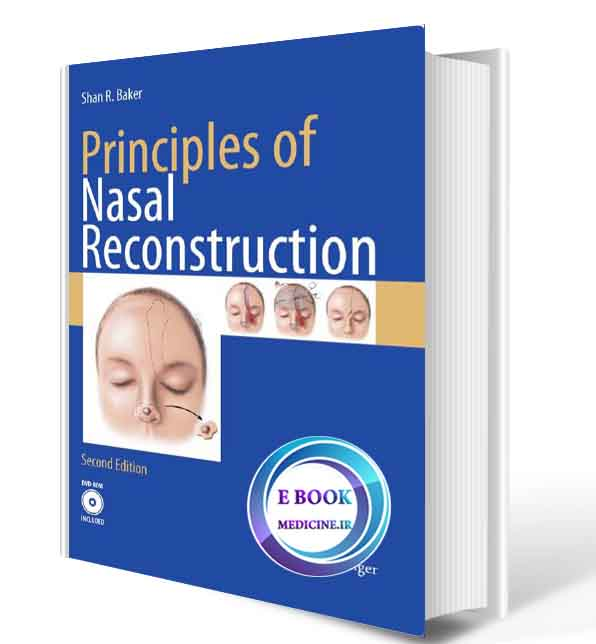 دانلود کتاب Principles of Nasal Reconstruction ( ORIGINAL PDF)